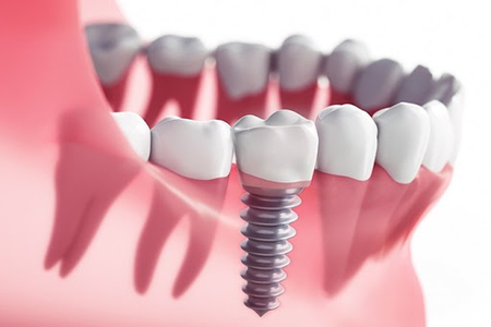 same day dental implant
